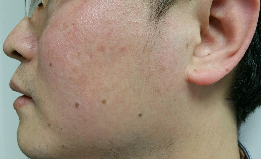 Laser for sun age freckles spots