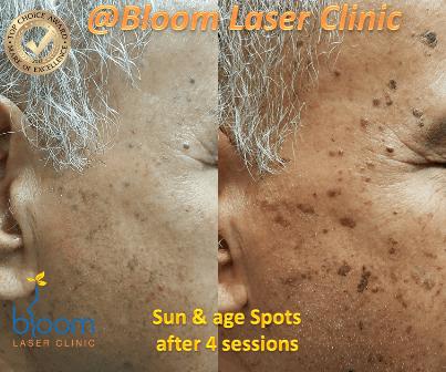 Sun spots 2 (1)