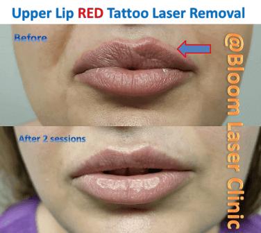 Tattoo Lip