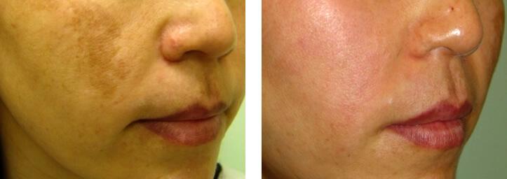 facial lasers in pregnancy