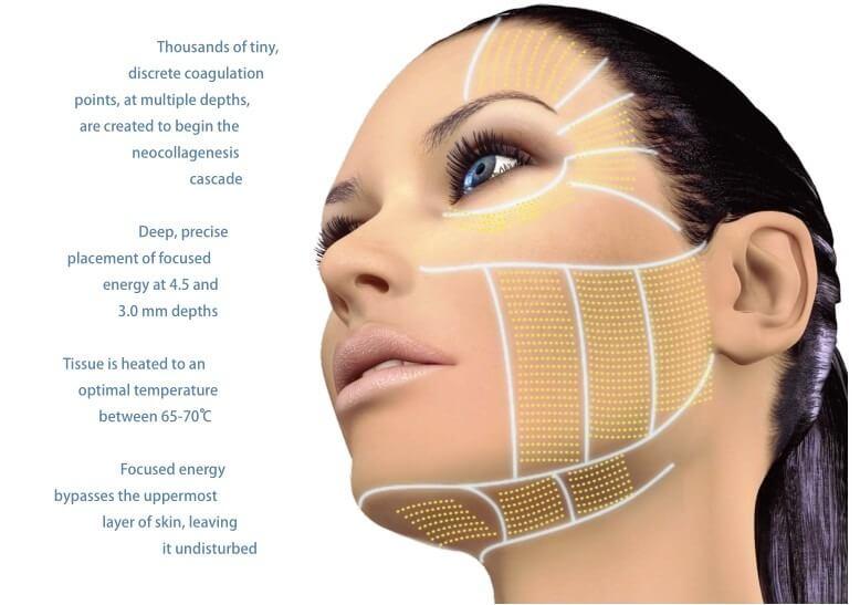 hifu-lifting-facial-sin-cirugia-en-rostro-D_NQ_NP_730845-MLA25578822430_052017-F
