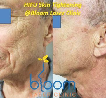 Skin Tightening HIFU – Bloom Laser Clinic